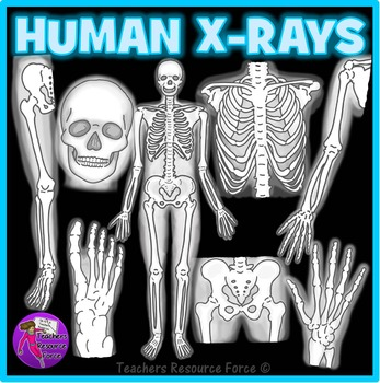 Human X-Ray Clip Art clipart