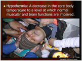 Hypothermia, Hyperthermia, Heat Stroke, Heat Exhaustion Po