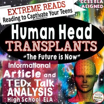 Informational Reading & TED Talks Lessons Head Transplant ELA High School