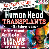 Informational Reading & TED Talks Lessons Head Transplant ELA High School