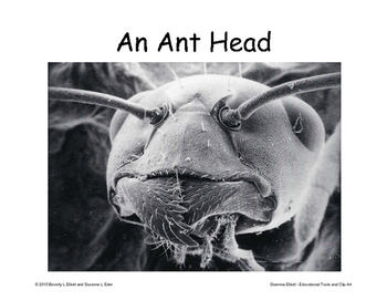 Insects for your Bulletin Board – Scanning Electron Microscope Images SEM