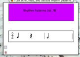 Interactive Flashcards- Rhythm Patterns Set 7B