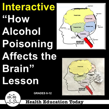 "Interactive Health Lesson: How Alcohol Poisoning Affects the Brain ""Flip-Up""!"