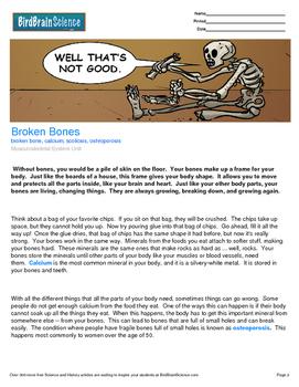 Intro to the Musculoskeletal System, Broken Bones -Engagin