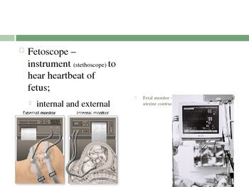 Labor and Delivery ppt