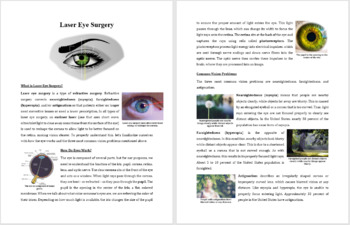Laser Eye Surgery - Science Reading Article