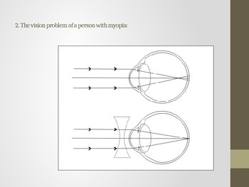 Lesson 21 Vision Problems Answers