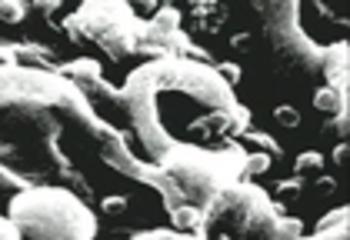 Los Virus, Listening Comprehenision in Spanish for Upper-l