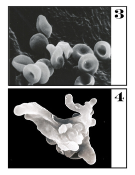 Microscope Image Guessing Game #3 with Scanning Electron Microscope Pictures