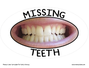 Missing Teeth Graph