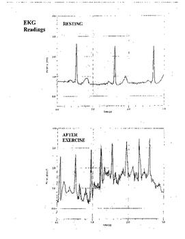 Monitoring EKG Lab
