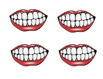 Mouth Pics