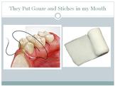 Mouth Surgery Social Narrative
