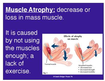 Muscle Atrophy vs. Hypertrophy