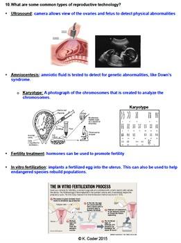 NOTES BUNDLE - Human Reproduction *EDITABLE* w/ PowerPoint