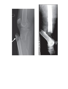 Name that Fracture!