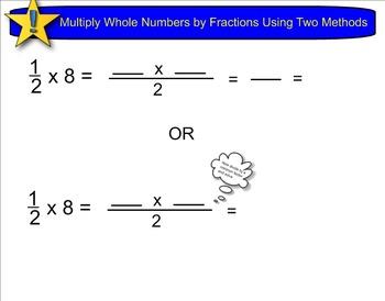 New York State 5th Grade Math Module 4 Lesson 11 Smart Notebook File