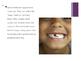 Oral Hygiene Powerpoint