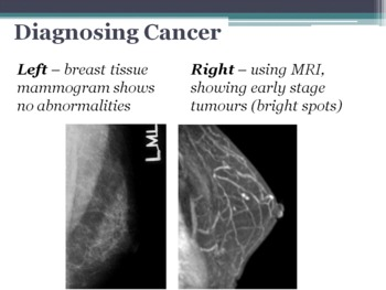 PREVIEW - Cancer - What it is, cause, screening, diagnostic & treatment