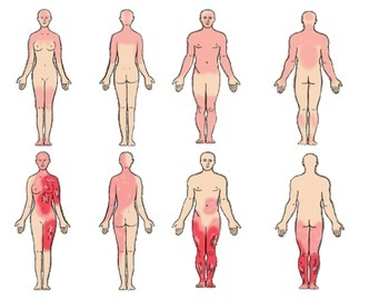 Paper Models Anatomy Burn Victims for Rule of Nines Activities