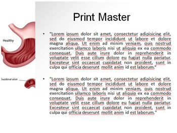Peptic Ulcer PPT Template
