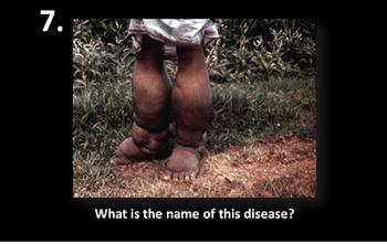Phylum Nematoda (Roundworm) Visual Practicum Test