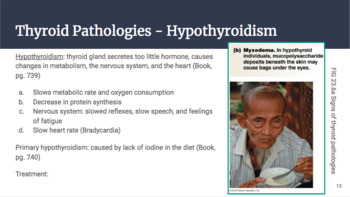 Physiology Chapter 23 Power Point Endocrine Control on Growth and Metabolism