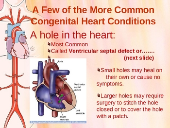 Problems of the Circulatory system