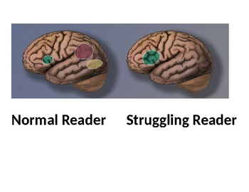 Reading and the Brain Bulletin Board Posters
