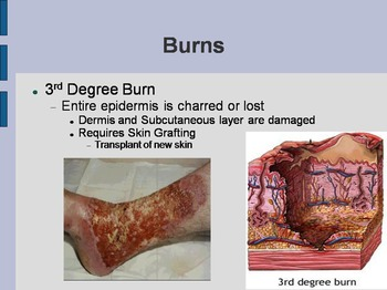 Burns and Skin Pathology PowerPoint - Science: Anatomy /Health