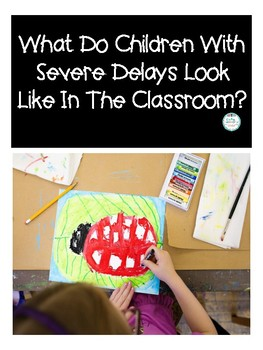 Severe Delays- Teacher Handout