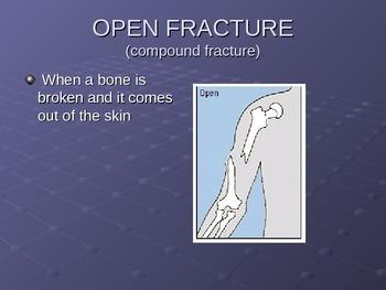 Skeletal Injuries