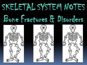 Skeletal System Notes Bone Fractures & Disorders Powerpoint Presentation