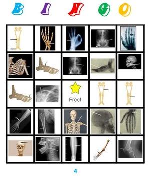 Skeleton Bingo