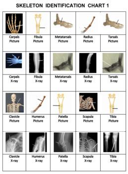Skeleton Pipe Line Game