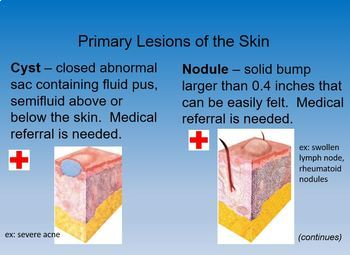 Skin Disorders & Diseases PowerPoint Notes - Cosmetology Science