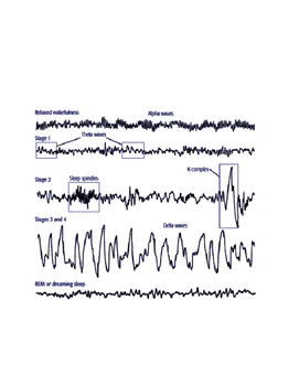Consciousness: Sleep Stages and EEG Practice