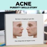 Social Narrative: Editable: Acne (Puberty)