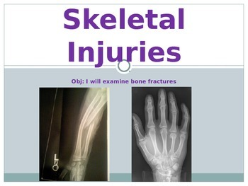 Sports Medicine Skeletal Injuries PowerPoint