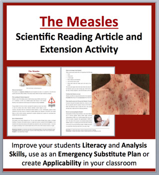 The Measles - Science Reading Article - Grades 5-7