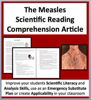 The Measles - Science Reading Comprehension - Grade 8 and Up