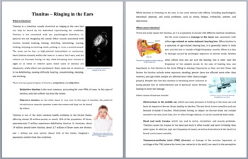 Tinnitus – Ringing in the Ears - Science Reading Article