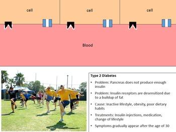 Type 1 vs. Type 2 Diabetes PowerPoint