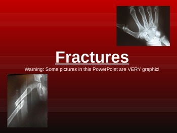 Types of Bone Fractures PowerPoint