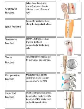 Types of Fractures Card Sort Activity
