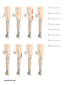 Types of Fractures Identification Quiz or Worksheet