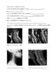 Types of Vertebrae Video Guide