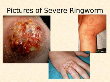 Typhus and Ringworm PowerPoint