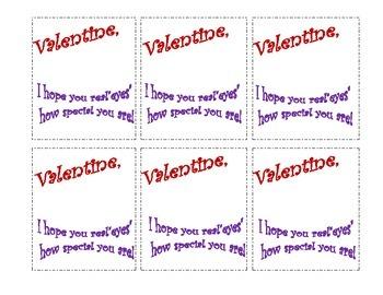 """Valentine """"Eyes"""""""