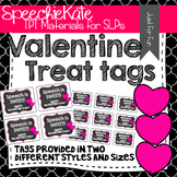 Valentine Treat Tags for SPEECH